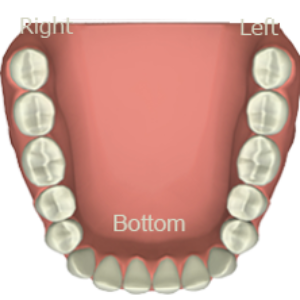https://a-dentalcenter.com/wp-content/uploads/2018/12/teeth-set-bottom-300x300.png